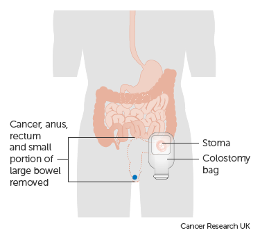 rectal cancer with a colostomy)