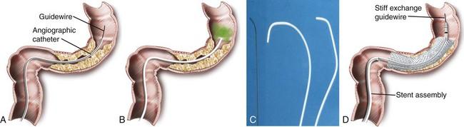 rectosigmoid cancer stent