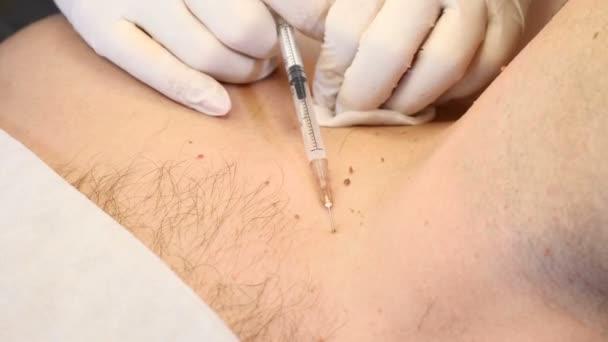 removal of papillomas)