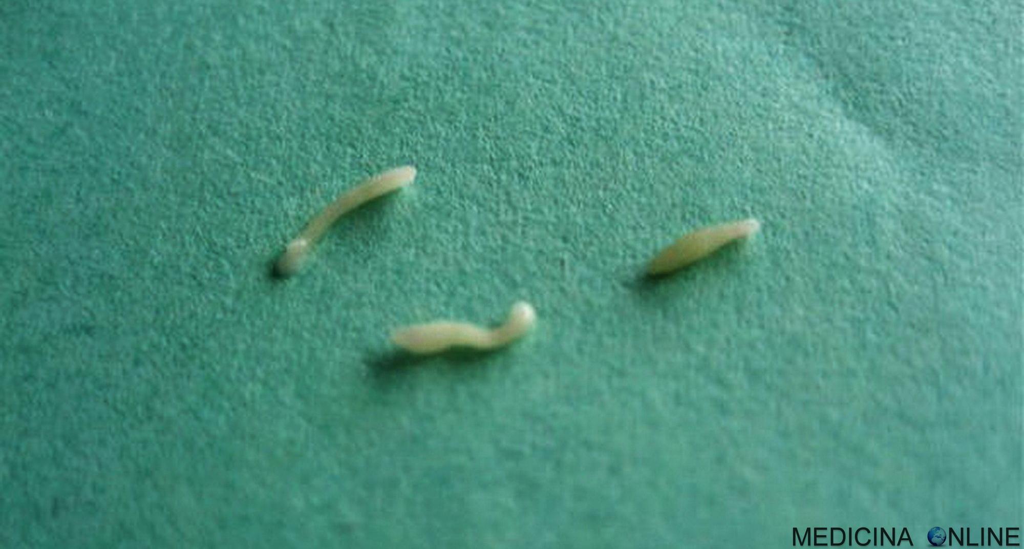 Che efficace vermi gatto Rimedi naturali contro gli ossiuri nei bambini