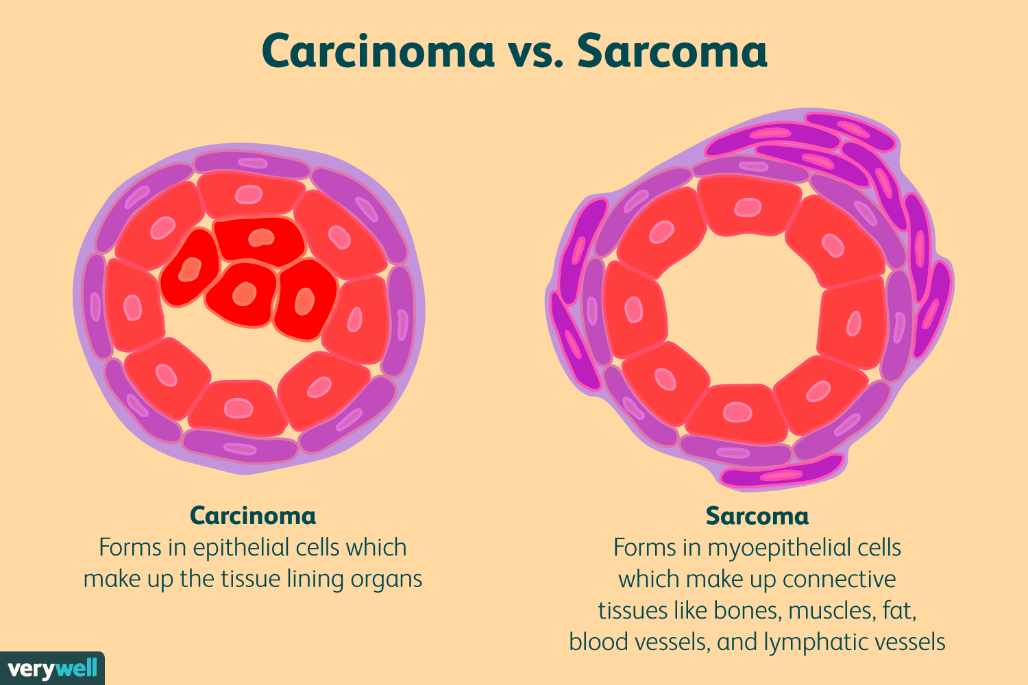 sarcoma cancer recurrence)