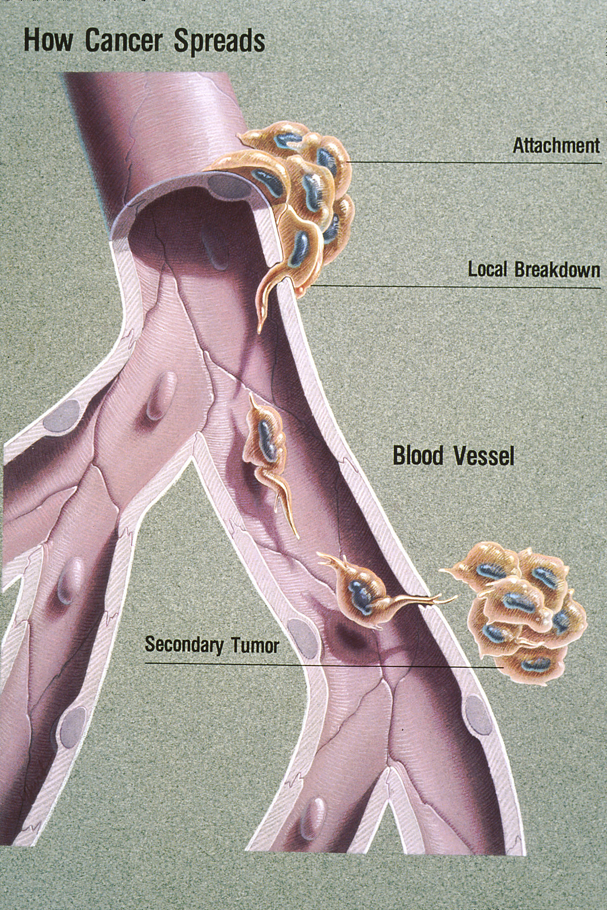 Metastatic cancer meaning in bengali - Înțelesul