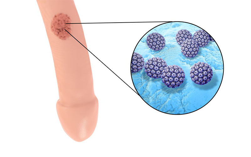 sintomi del papilloma virus nell uomo