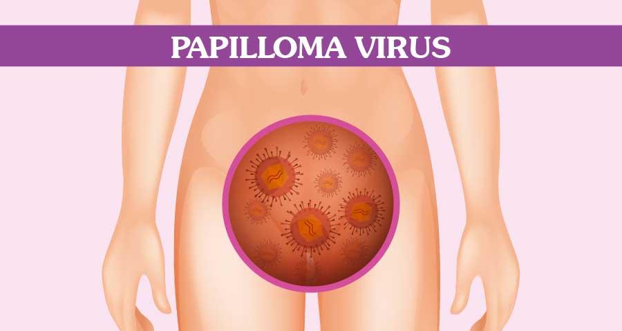 sintomi evidenti papilloma virus)