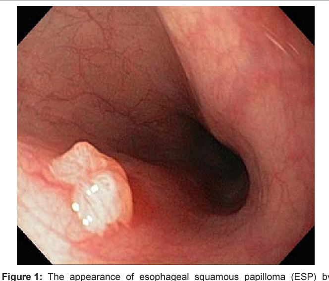 squamous papilloma esophagus hpv