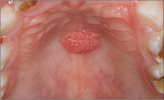 treatment for squamous papilloma penyakit papiloma adalah