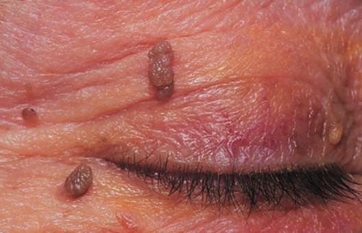treatments for papillomas