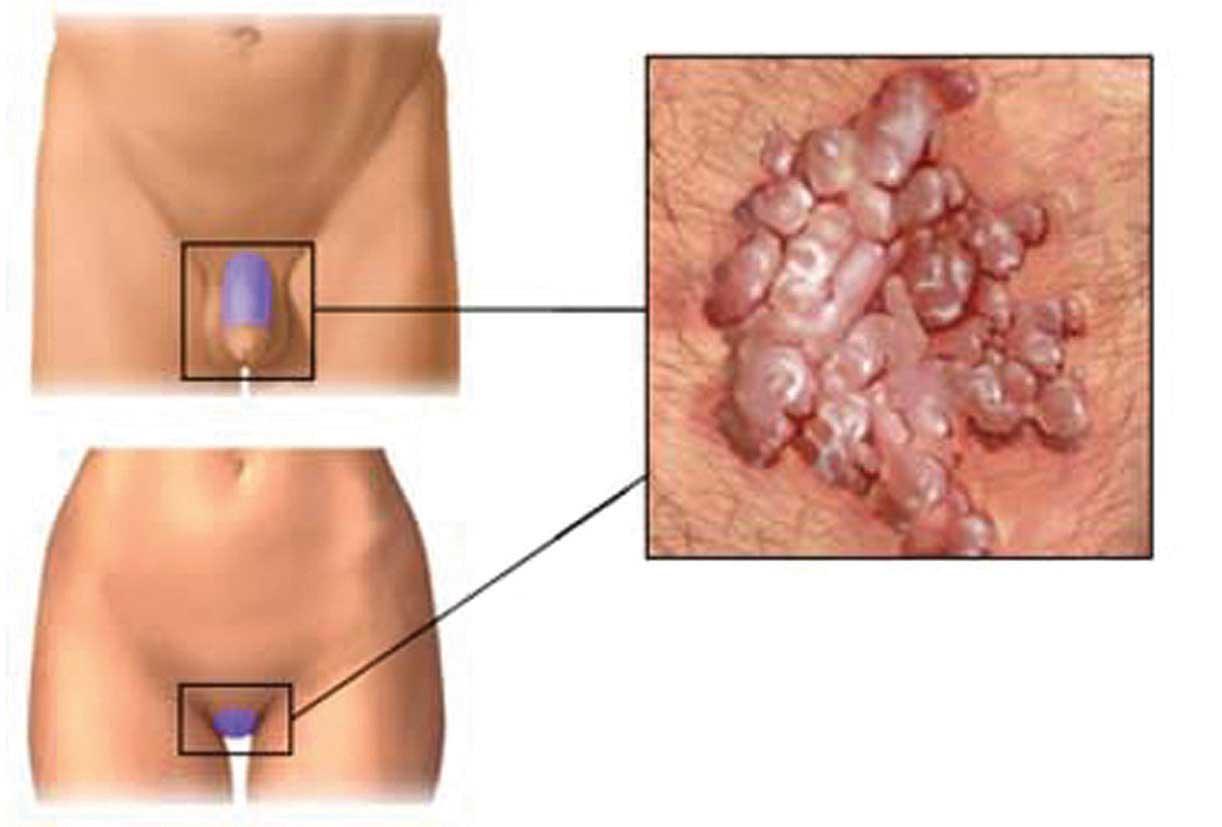 tumore a papilloma)