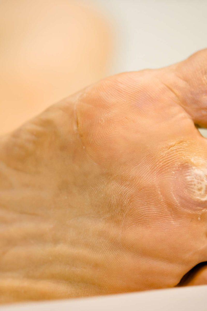 Foot verruca plantar treatment