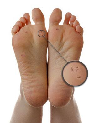 verruca hurting foot)