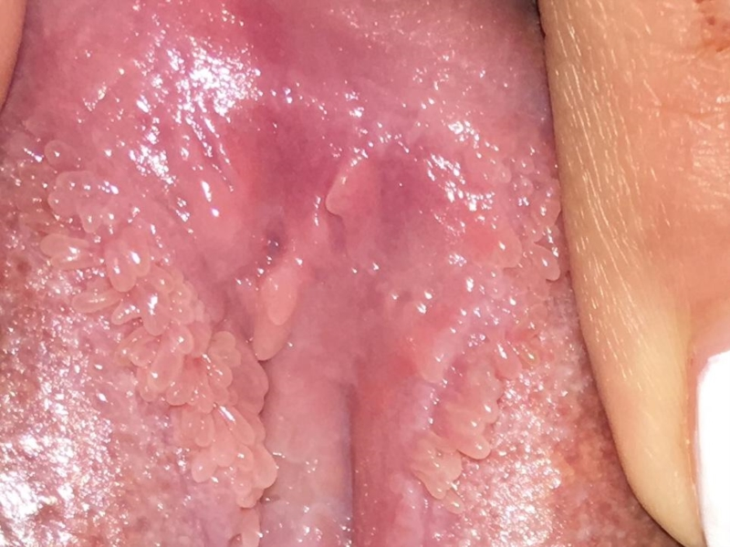 vestibular papillomatosis with genital warts