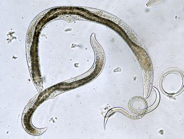 viermi rotunzi la vârsta adultă vaccino papilloma virus bergamo