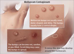 wart like virus molluscum