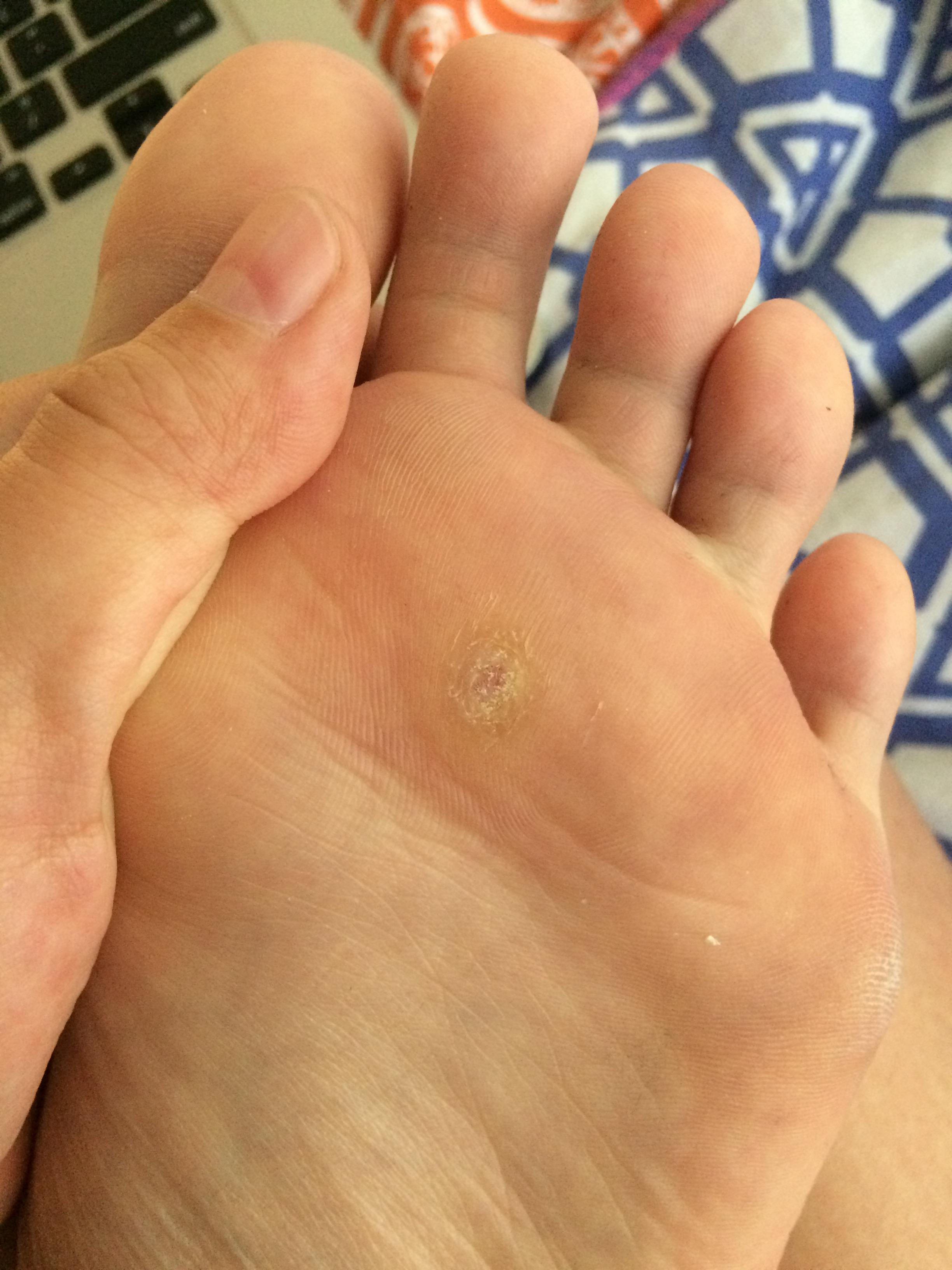 Wart removal foot duct tape -