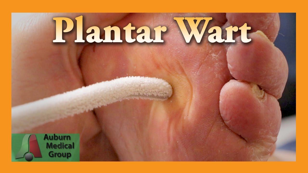 warts feet treatment