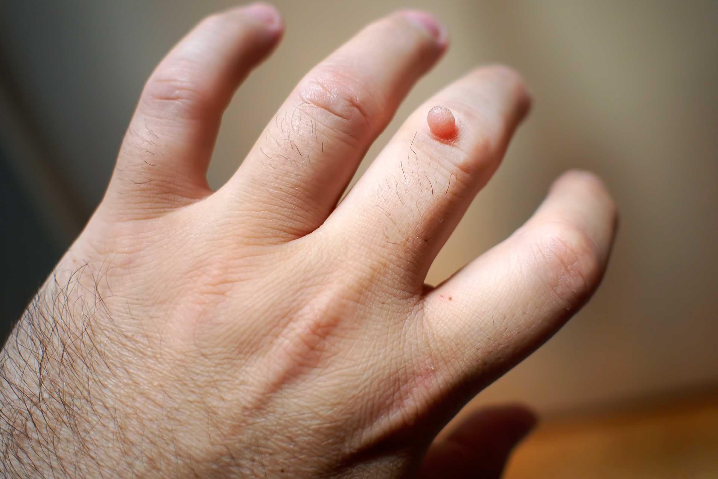 o pastila parazita soorten anemie
