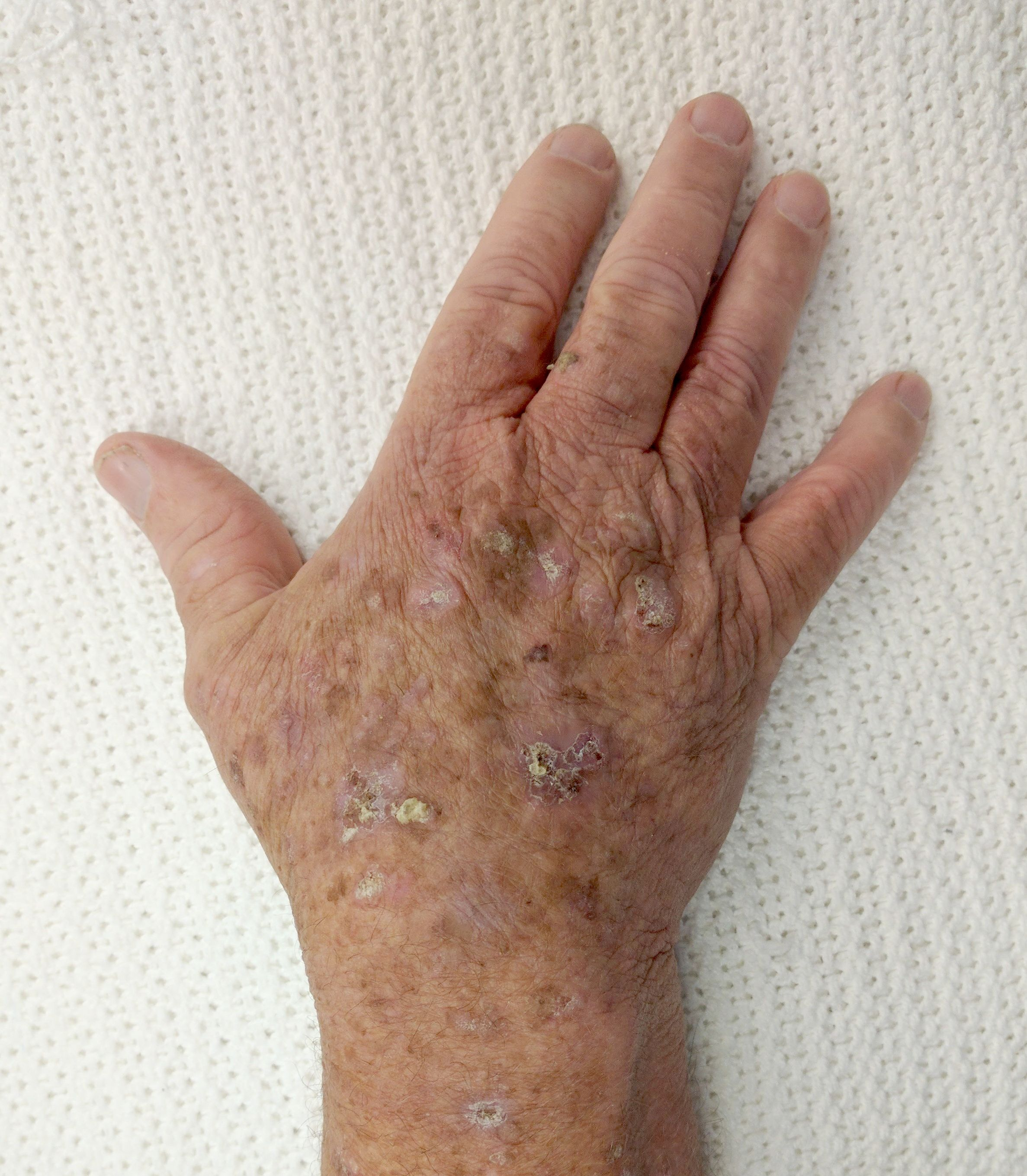 warts on hands from sun cancer blanco que es