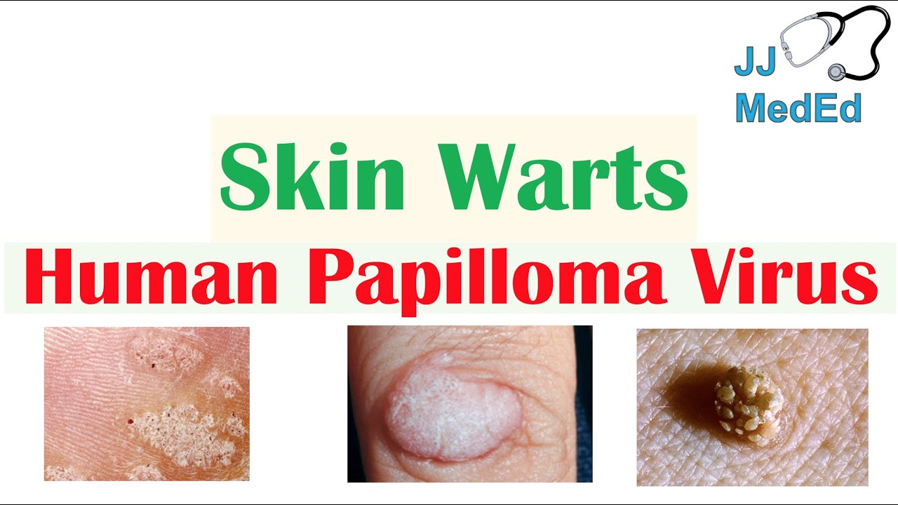 warts skin treatment
