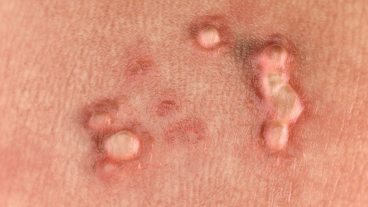 what is hpv papilloma)