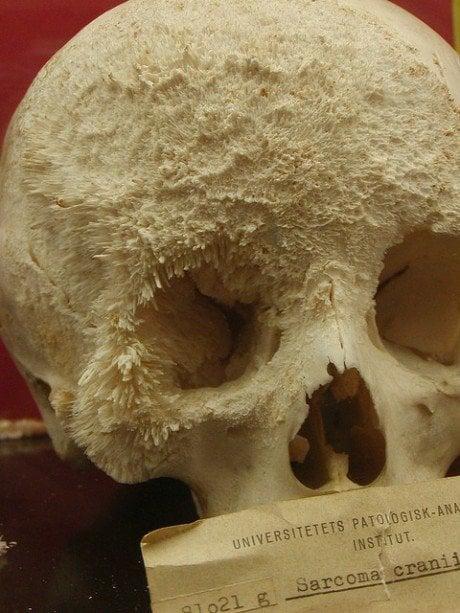 sarcoma cancer bone