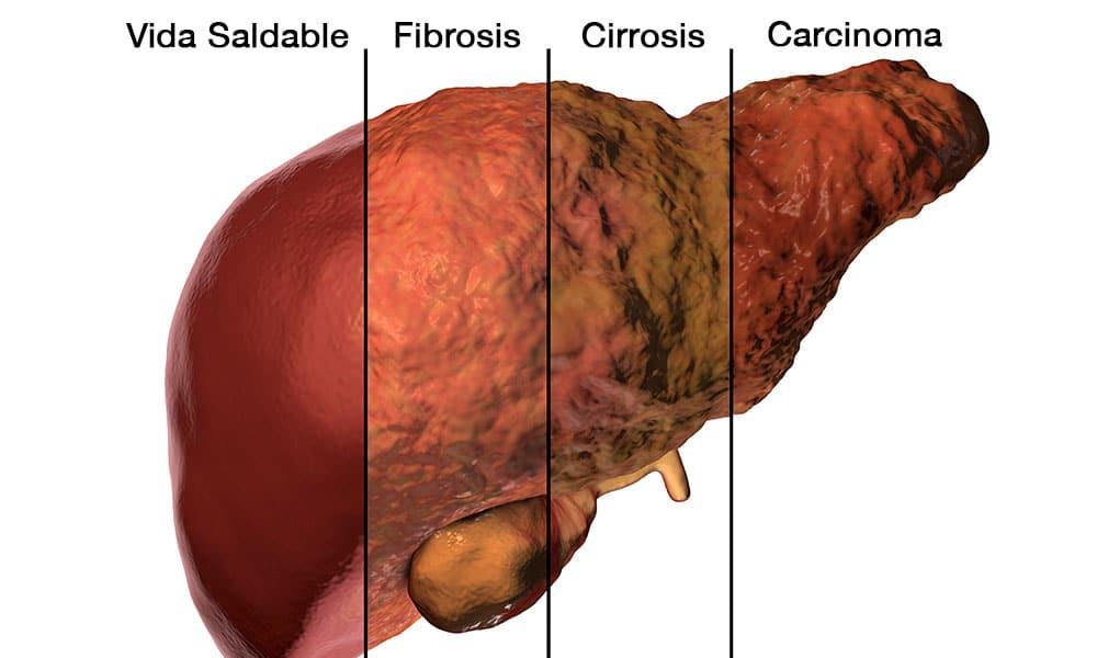 Cancer pulmonar higado Carlos Castaneda Blog comunitar