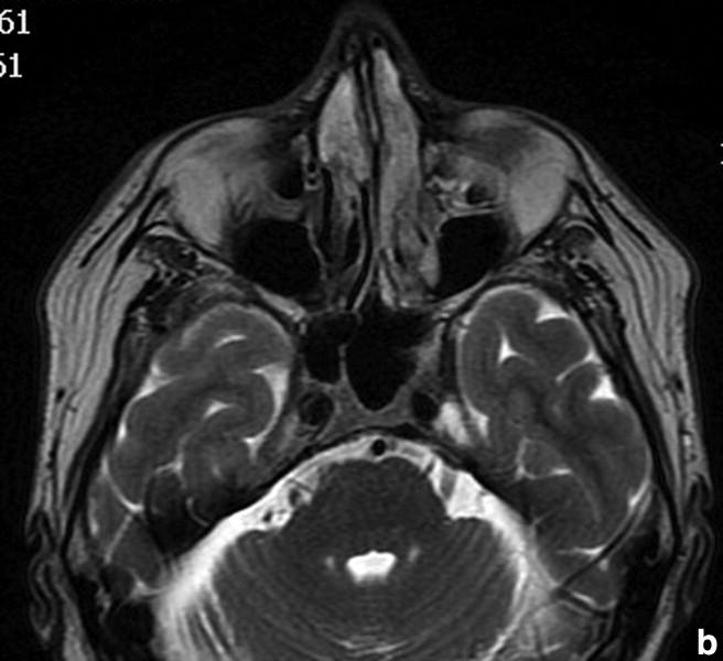 papilloma invertito risonanza magnetica