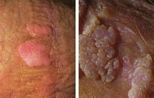 human papillomavirus cause genital wart
