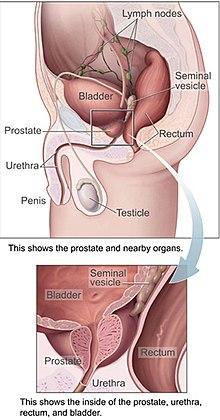 cancer epitelial de prostata)