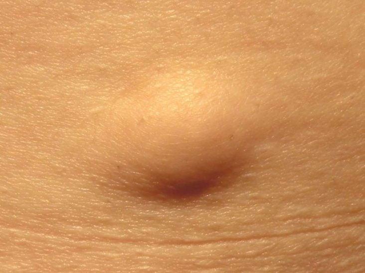 papilloma in skin)