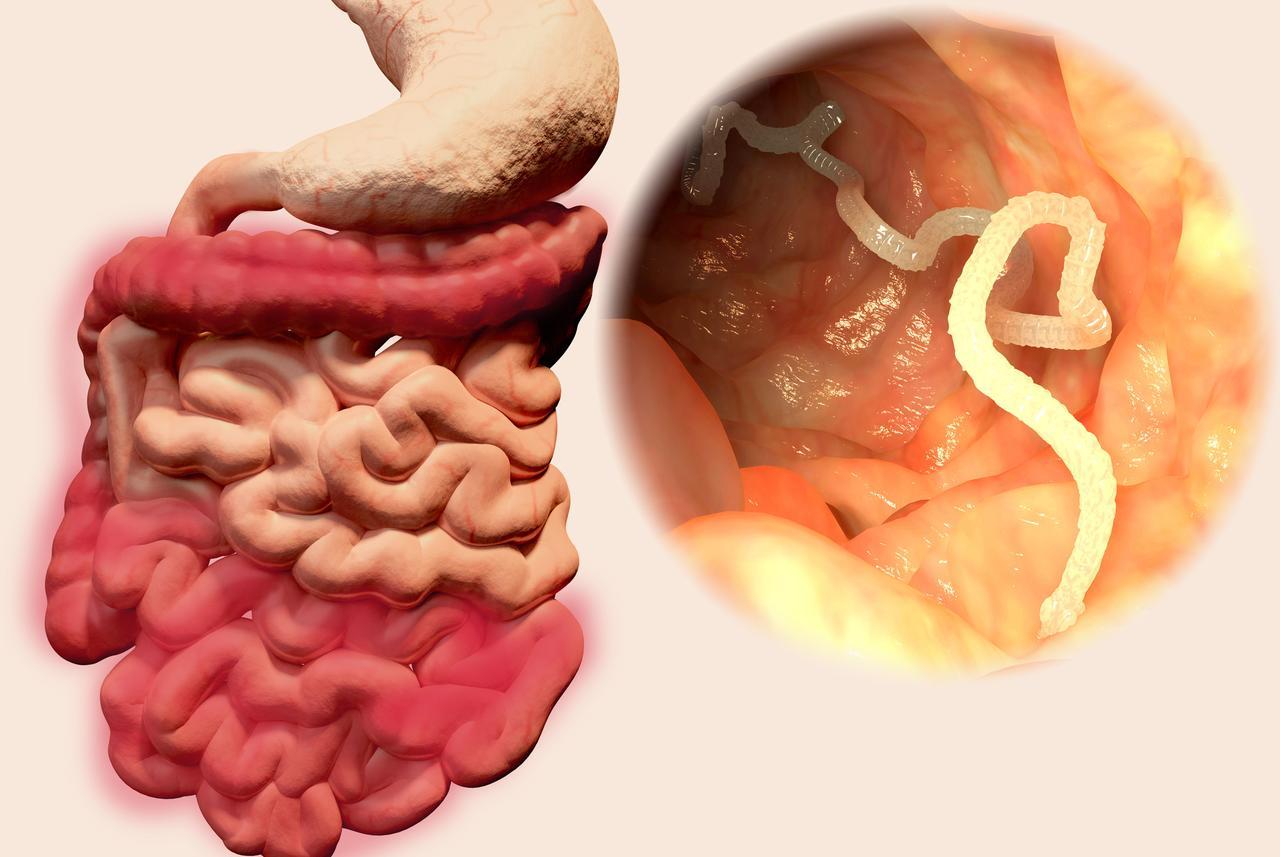 plucni paraziti kod ljudi
