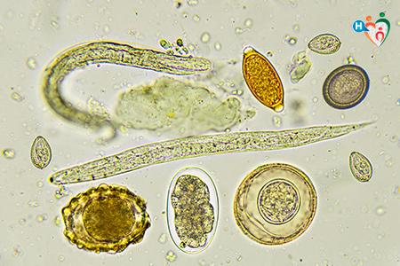 enterobius vermicularis bambini)
