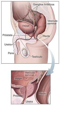 paraziți în tratamentul prostatei)