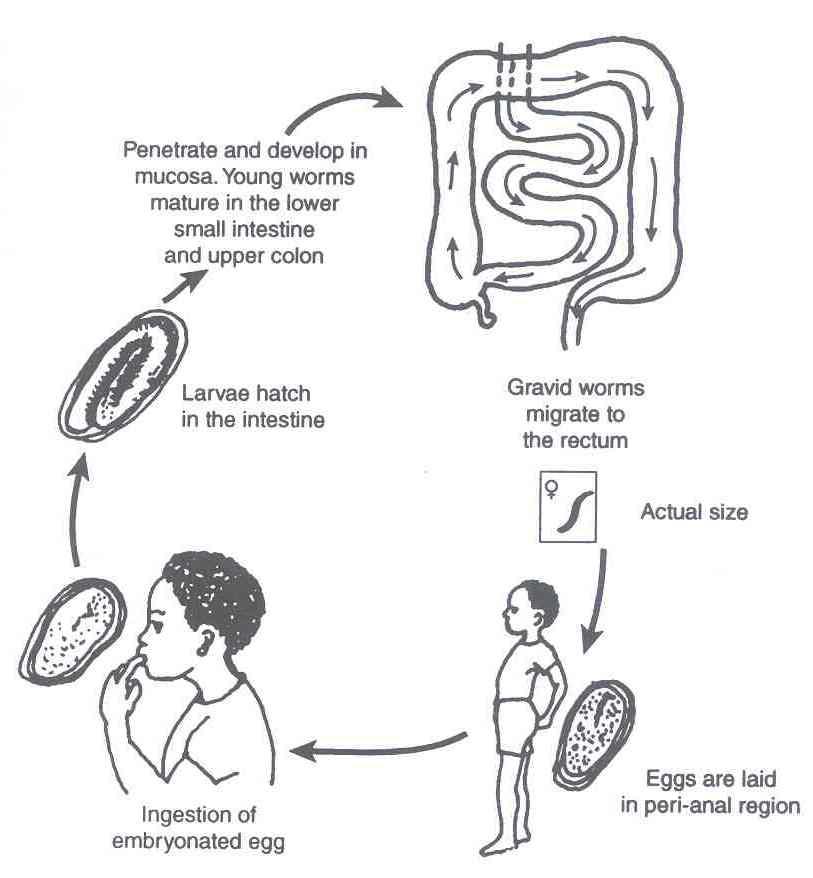 tratamentul pozitiv al enterobiozei la copii)