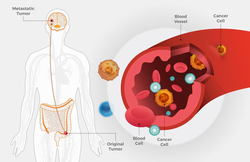 metastatic cancer causes)