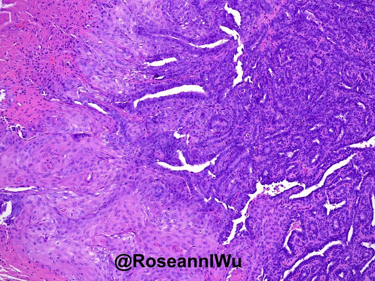 intraductal papilloma with squamous metaplasia)