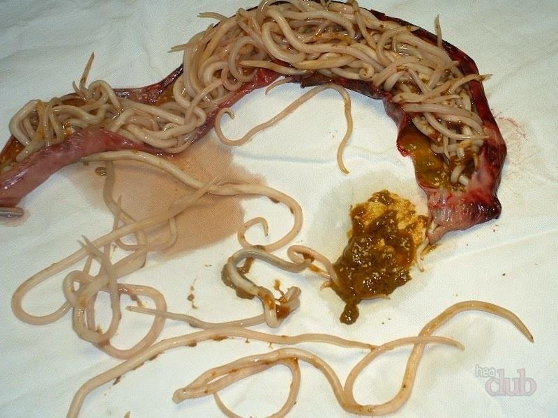 pregătire pentru enterobiaza viermilor)