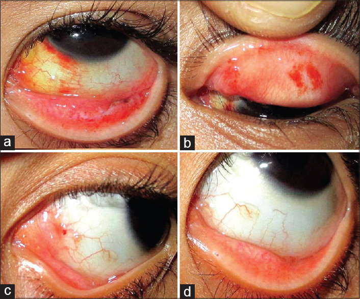hpv conjunctival papilloma hiv and bladder problems
