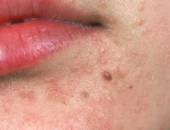 skin warts on face treatment)