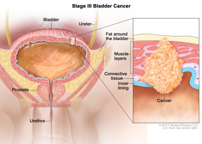cancer malign la vezica urinara)