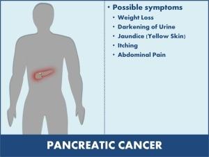 pancreatic cancer abdominal tenderness