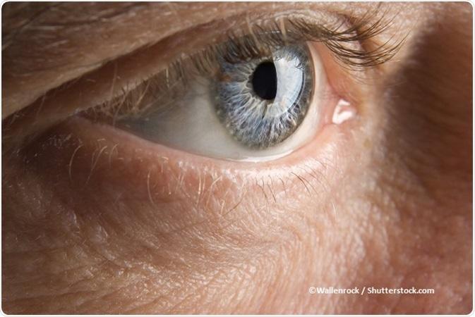 Papilloma occhio
