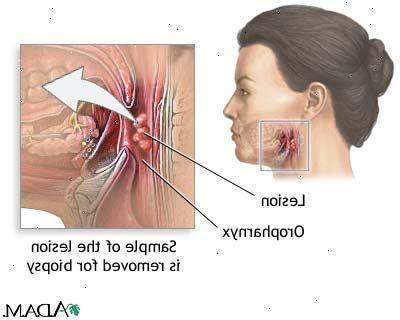 hpv virus svalgcancer symptom
