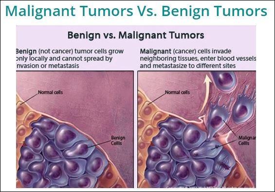 cancer malign cauze