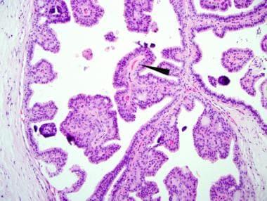 intraductal papilloma histopathology