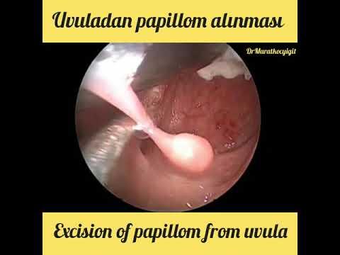 Uvula papillom entfernen - Papilloma colli uteri