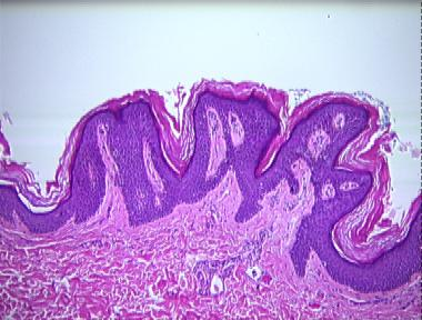 histopathology of confluent and reticulated papillomatosis