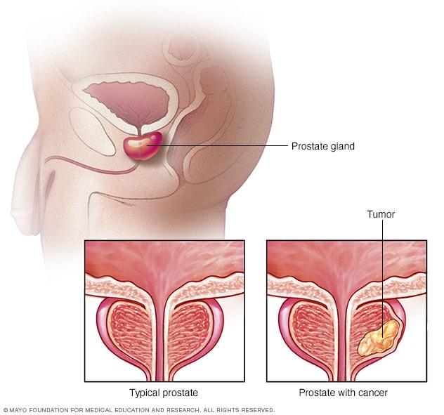 Durere rectala cauze medic