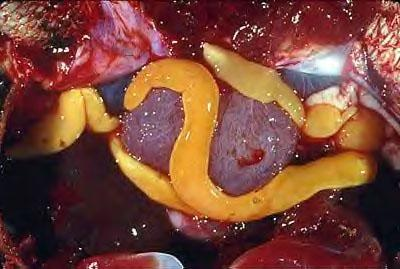 Sintomas virus papiloma en boca, Papilloma virus e herpes