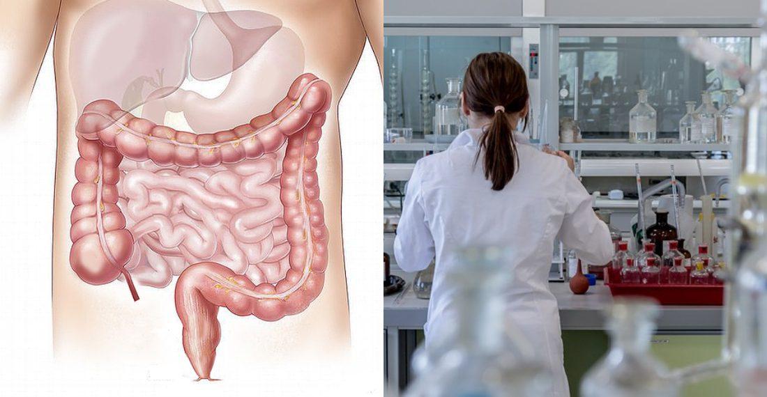 cancer de colon que lo provoca)