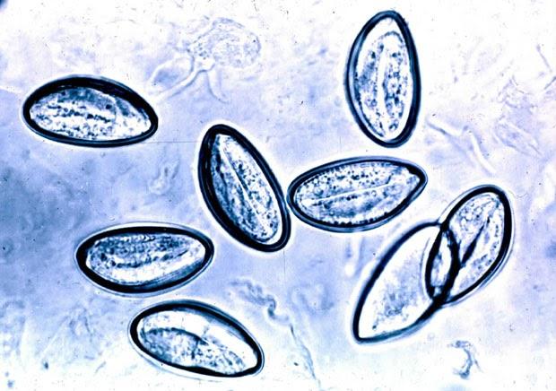 enterobius vermicularis u oxiuros tratamiento)